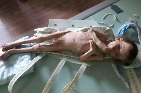 Судят депутата из Кировоградской области и его жену, которые морили голодом сына