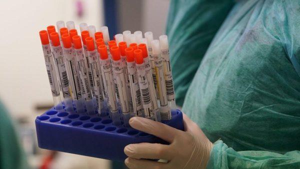 В Кировоградской области новый антирекорд: 149 человек заболели коронавирусом