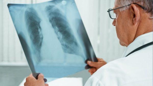 В Александрии увеличилось количество больных коронавирусом и пневмонией