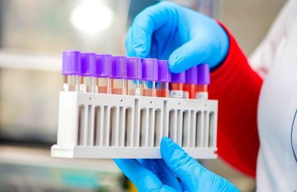 В Александрии еще 22 человека заразились коронавирусом, двое умерли от COVID-19
