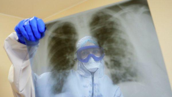 В Александрии коронавирусом заболели еще 22 человека
