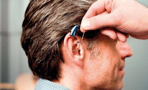 Что нужно знать о слуховых аппаратах